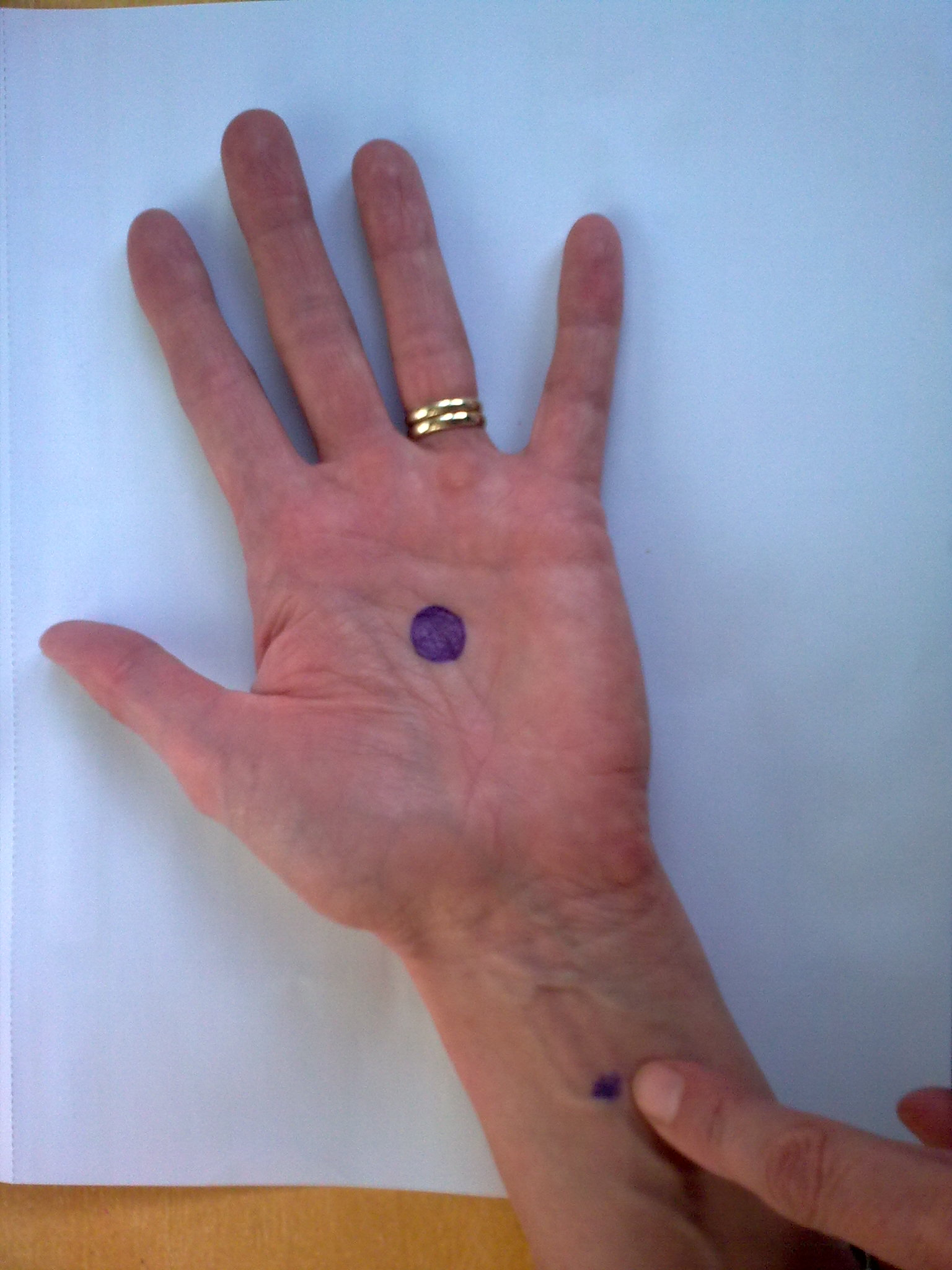 foto hartbeschermer/pericardium 6